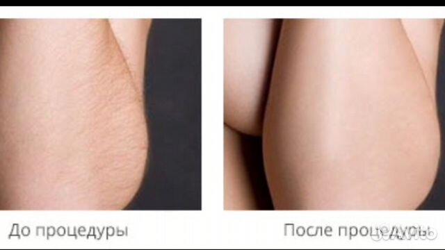 Лазерная эпиляция московская область