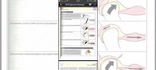 доусон функциональная окклюзия pdf